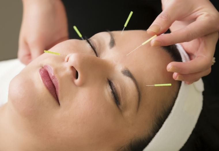 acupuntura para adelgazar efectos