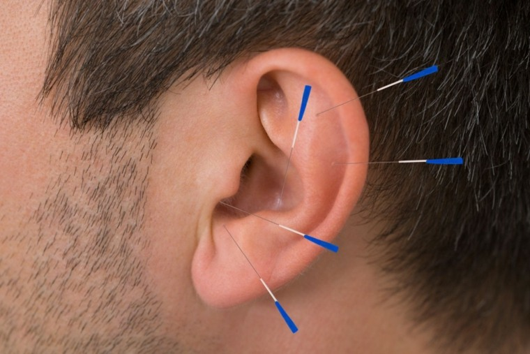acupuntura para adelgazar puntos oreja