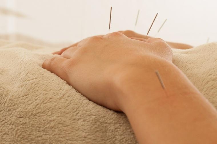 puntos manos tratamiento acupuntura