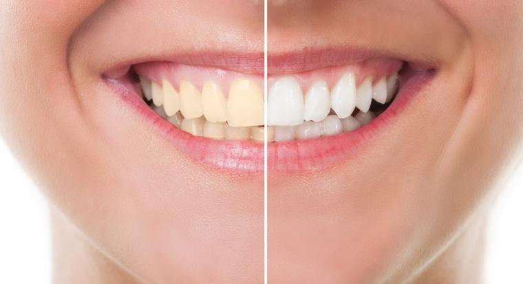 pasta dental-dientes-blanqueamiento-ideas