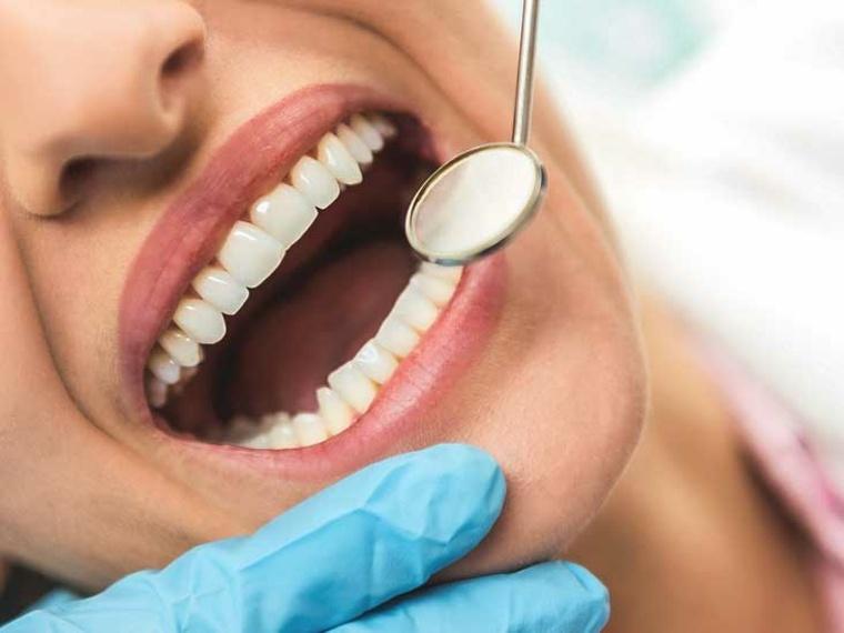 erosión-del esmalte dental