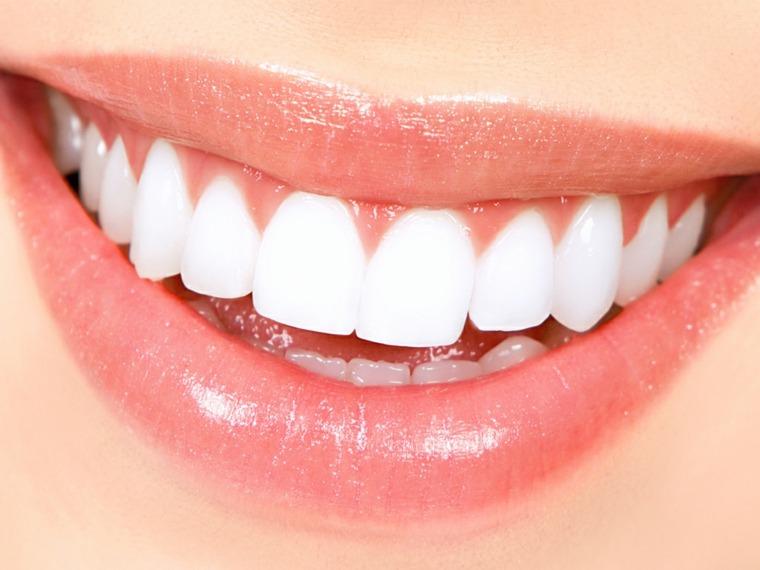 esmalte dental-blanco-brillante