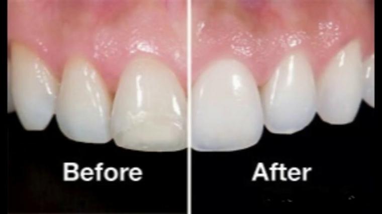esmalte dental-blanqueado