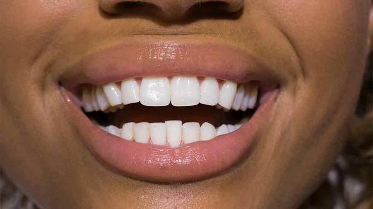 esmalte-dental-restauracion