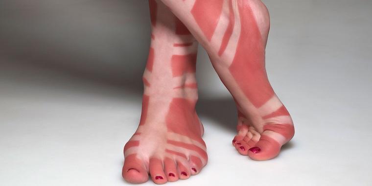remedios caseros para quemaduras solares quemaduras-piel-verano-pies