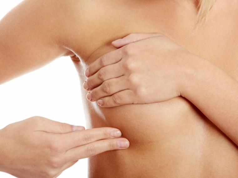 operacion de senos-estrias-implantes