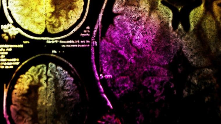 orgasmo-sexo-cerebro-funcionamiento