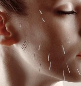 acopunctura-facial-ideas-consejos