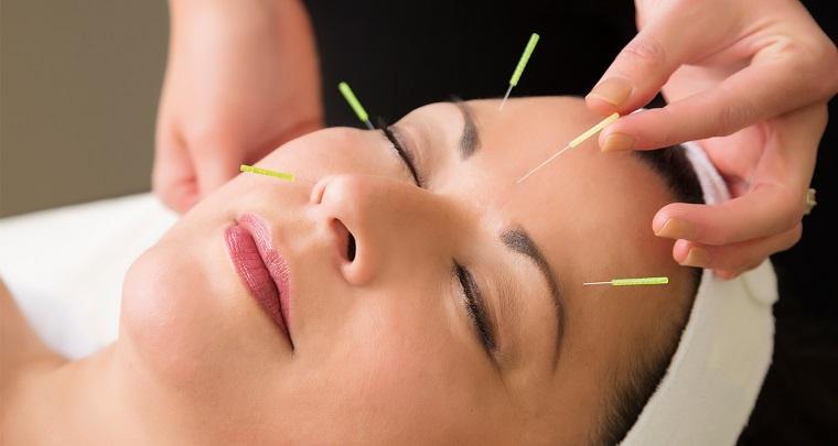 acupuntura facial-rejuvenecer-rostro-ideas