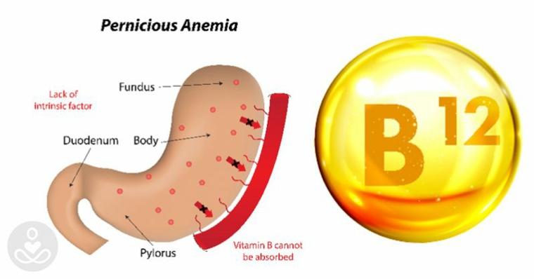 Vitamina b12 muy alta causas