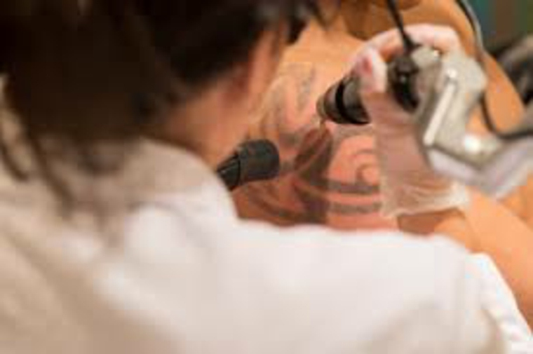 cómo quitar tatuajes