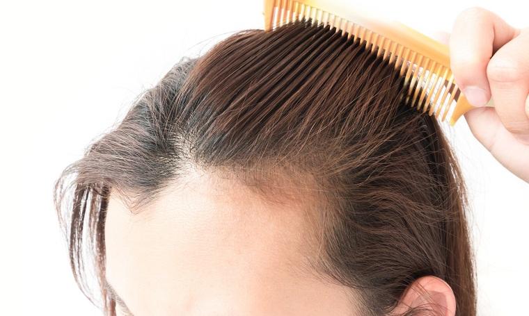 causas de la caida del cabello mejorar-pelo