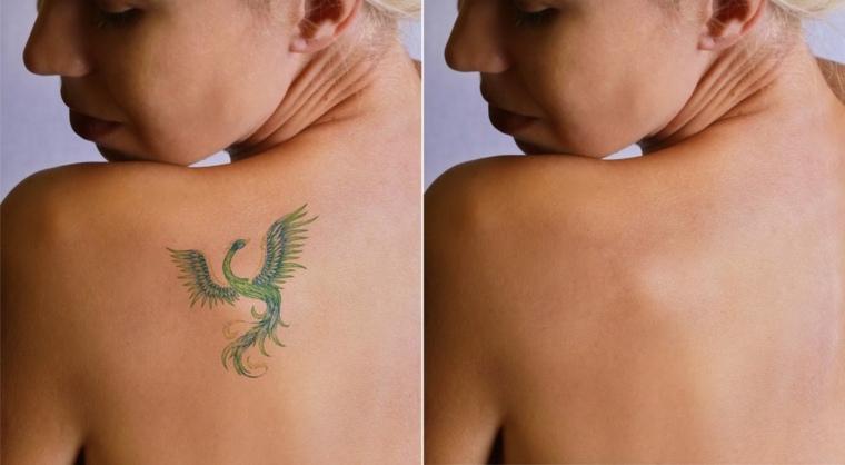 eliminación de tatuajes antes y después