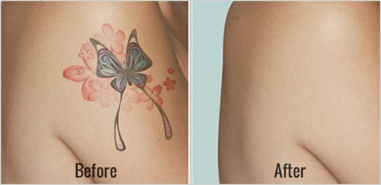 eliminación de tatuajes con láser