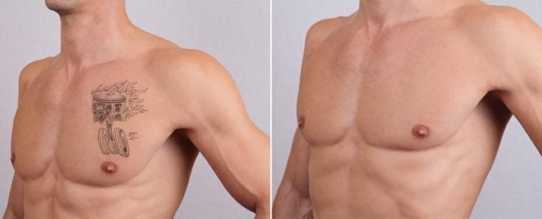 eliminación de tatuajes en el pecho