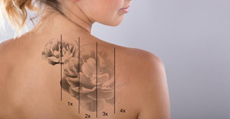 eliminación de tatuajes esquema