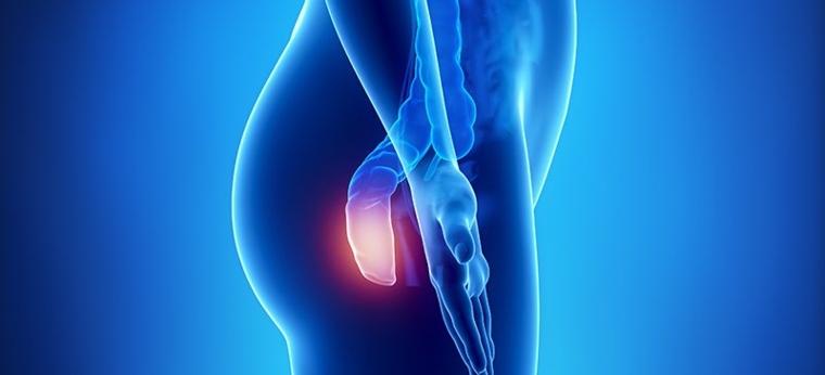 hemorroides tratamientos-consejos-quietar-dolor