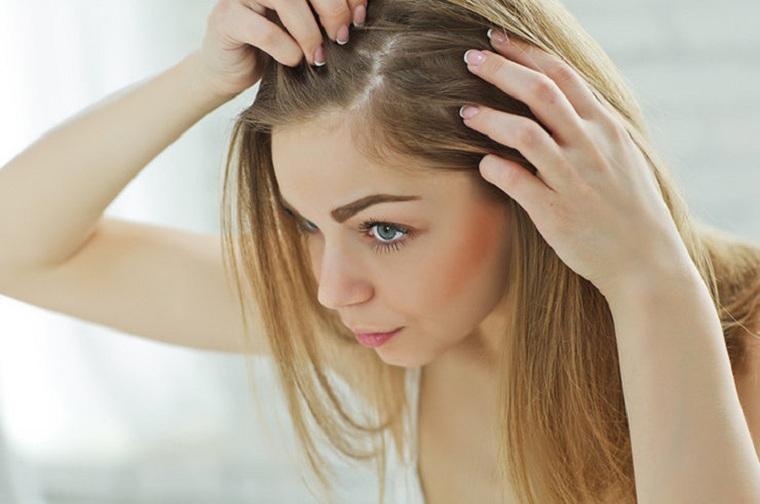 mujer-sufrir-perdida-cabello-razon