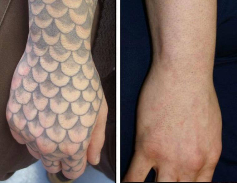 quitar tatuajes antes y después