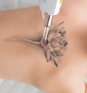 quitar tatuajes con láser