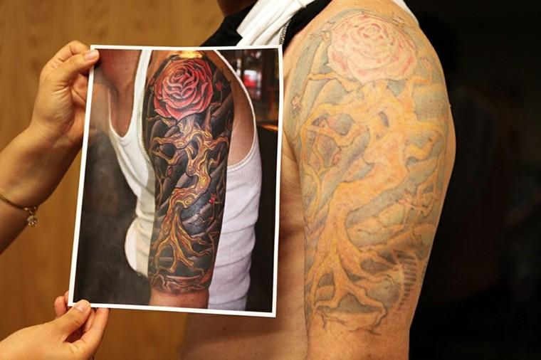 quitar-tatuajes resultado insatisfactorio