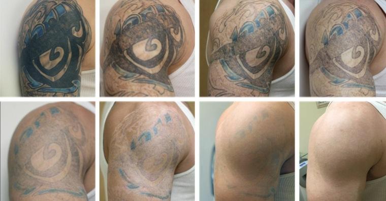 quitar tatuajes tratamiento láser
