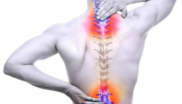 Solución para problemas de espalda