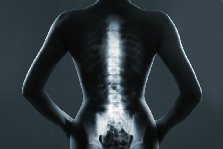Salud lumbar y de esplada