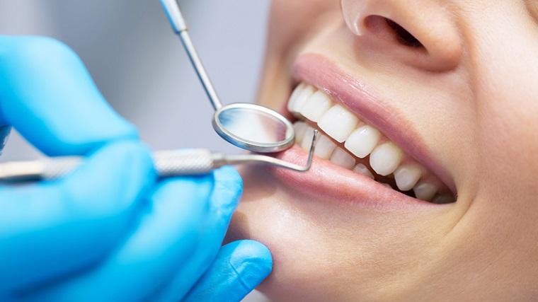 dientes perfectos salud dental bebidas