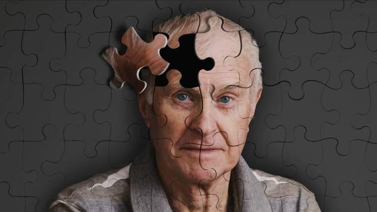 el plastico alzheimer