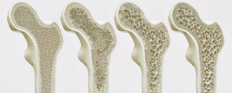 los refrescos osteoporosis