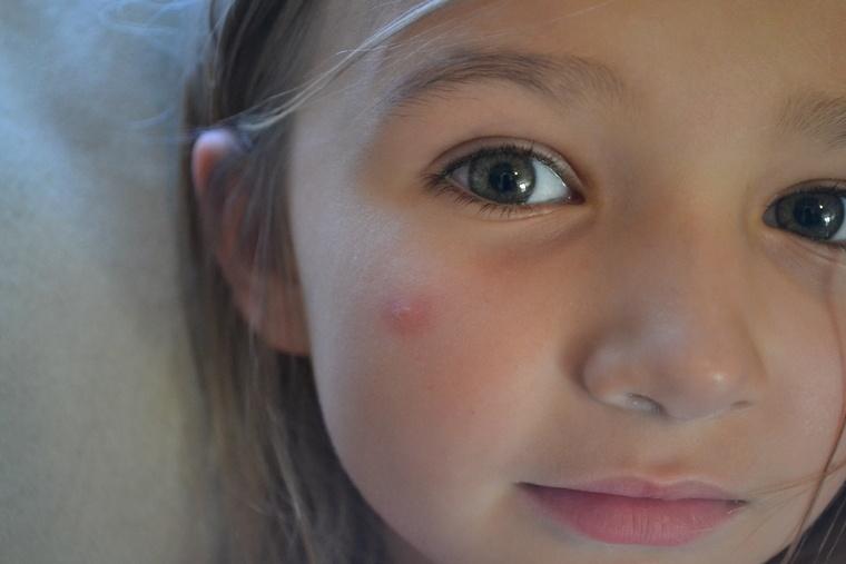 mosquito común picadura