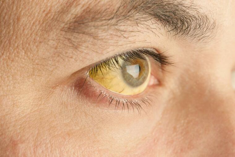 mosquito comun fiebre amarilla