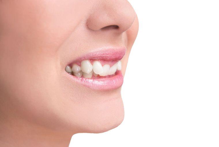 onicofagia dentadura