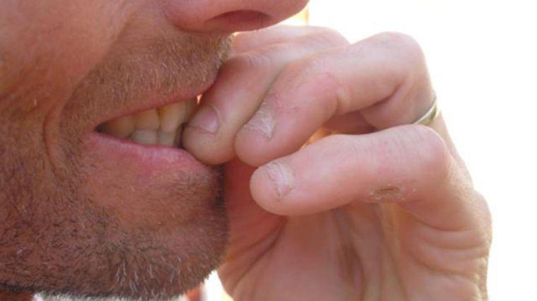 onicofagia frecuente