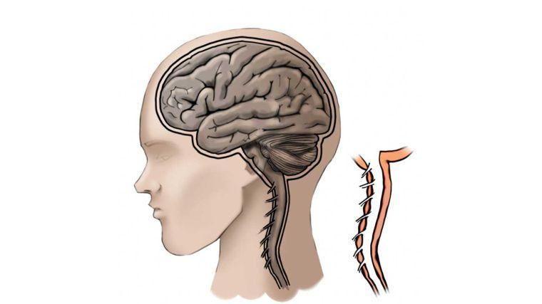 meningitis espina