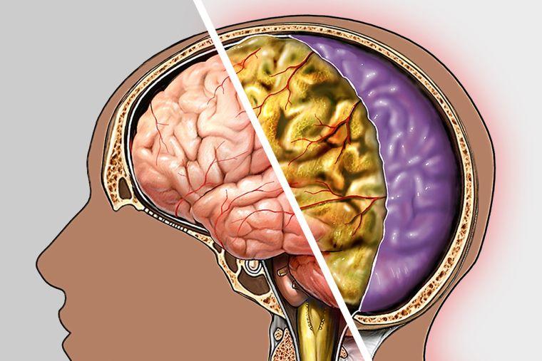meningitis guia