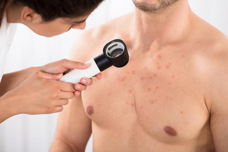 remedios caseros para acne