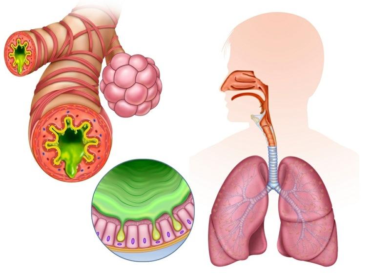 remedios-caseros-para-la-bronquitis-consejos