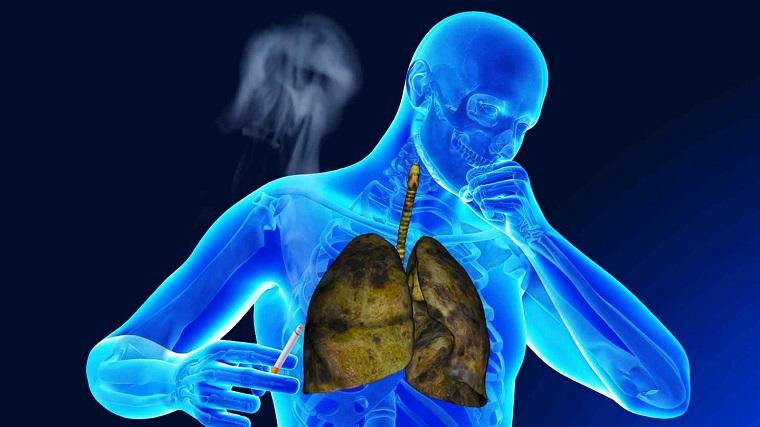 remedios caseros para la bronquitis-fumadores