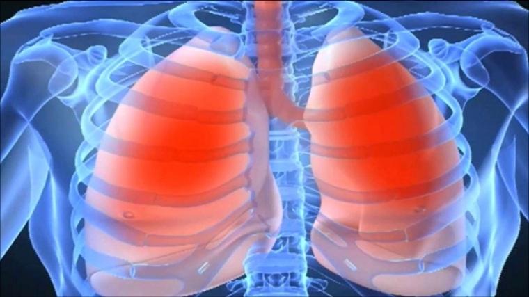 remedios-caseros-para-la-bronquitis