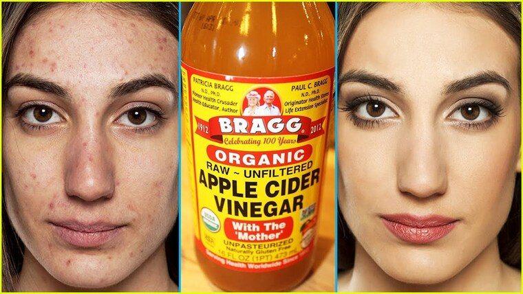 remedios caseros para manzana