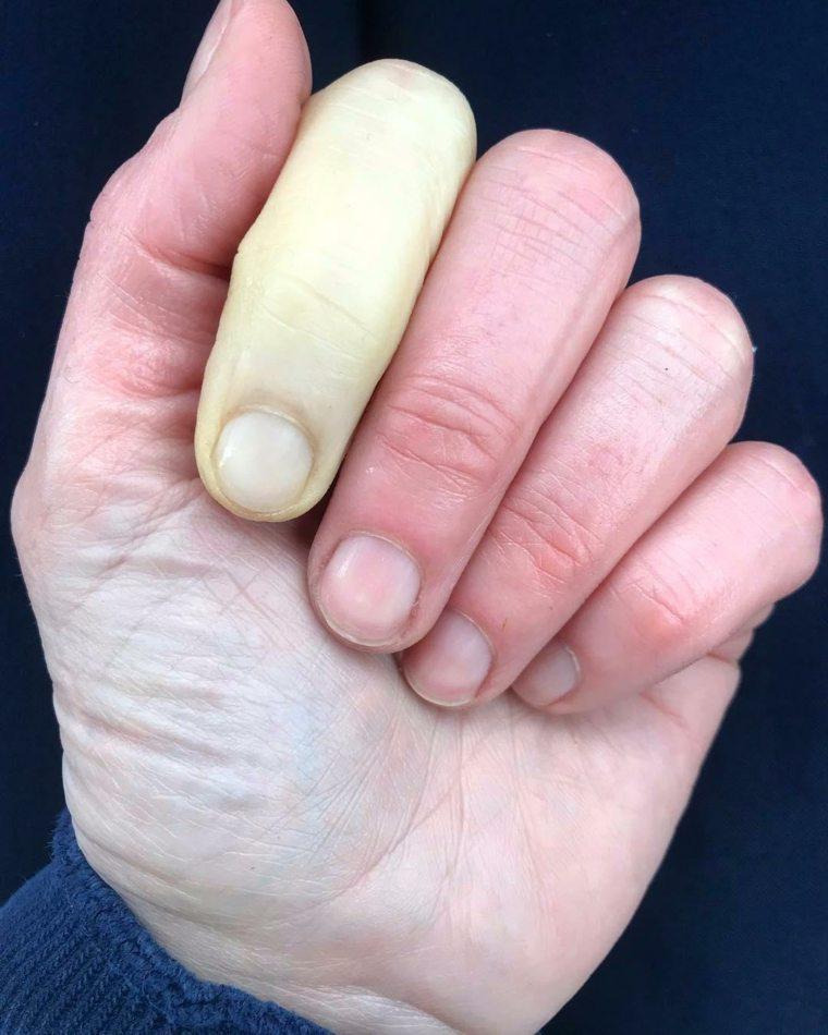 ¿Qué es la enfermedad de Raynaud?