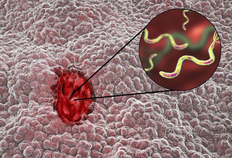 úlcera duodenal bacteria