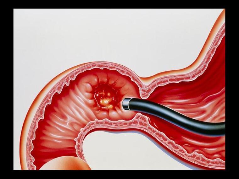 úlcera duodenal grieta