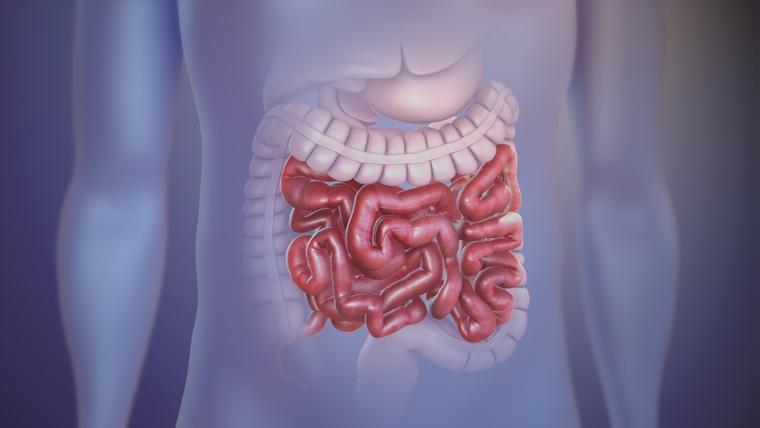 ulcera duodenal obstruccion