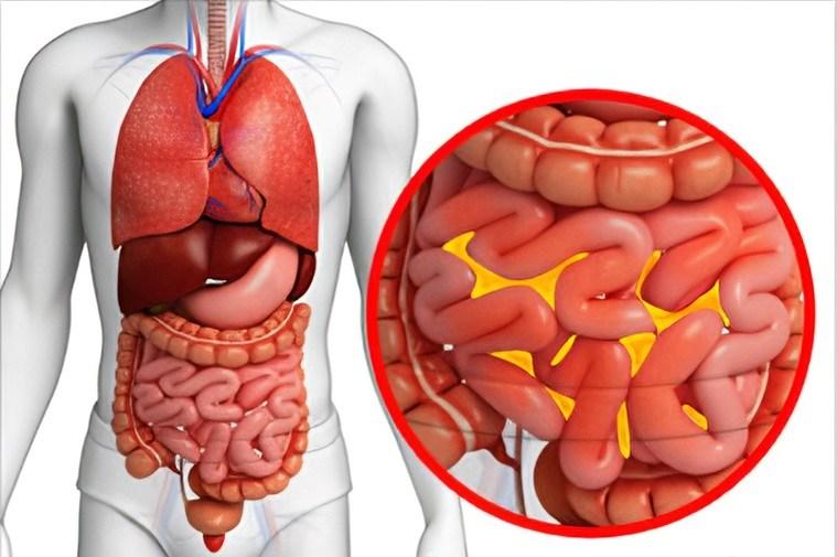 úlcera duodenal peritonitiss