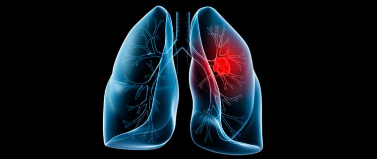 cigarro electrónico cancer