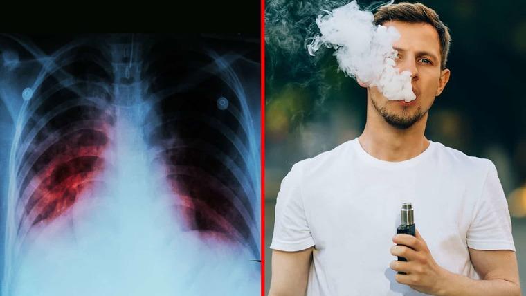 cigarro electrónico daño