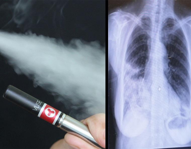cigarro electrónico enfermedad